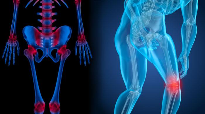 Артрит коленного сустава лечение травы